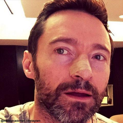ヒュー・ジャックマンが公開した、治療後の写真