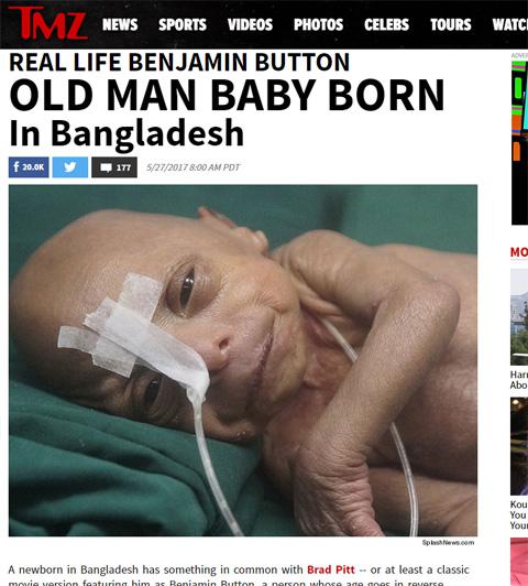 プロジェリア症候群を患う、バングラディッシュの赤ちゃん
