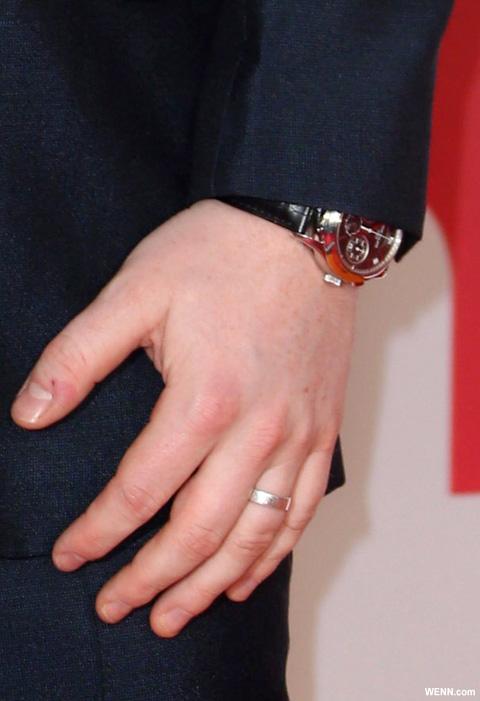 エド・シーランの婚約指輪